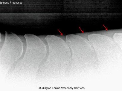 Spine Radiograph