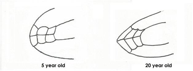 Evolution of teeth