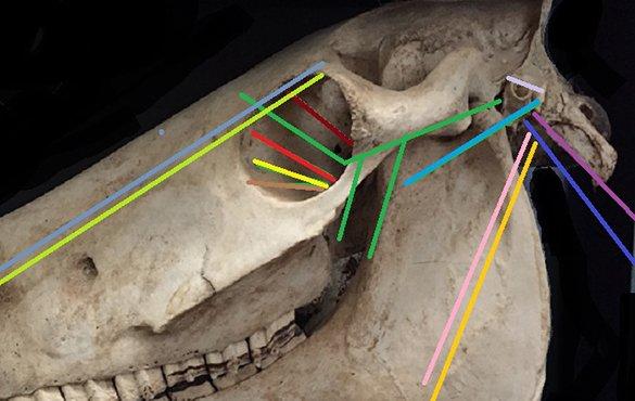 Cranial nerves thumbnail