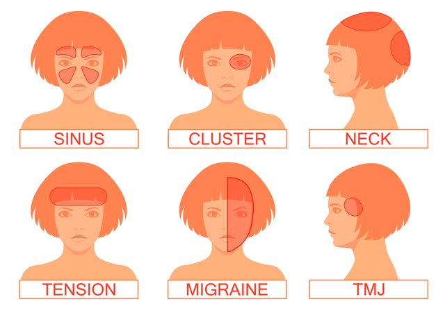 types of headaches in humans
