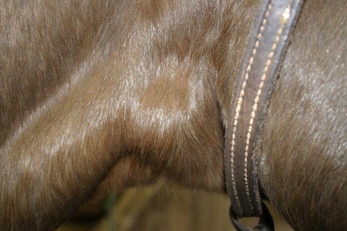 Enlarged gland Goiter